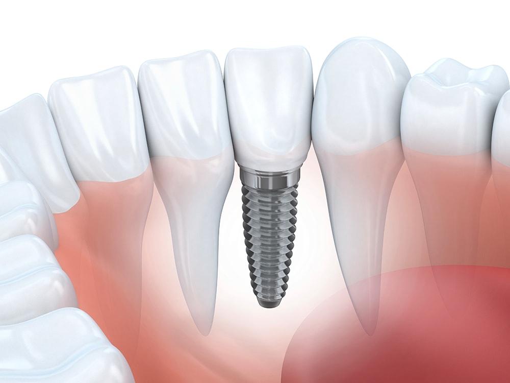 Bone Grafting for Dental Implants | DentalPlans com