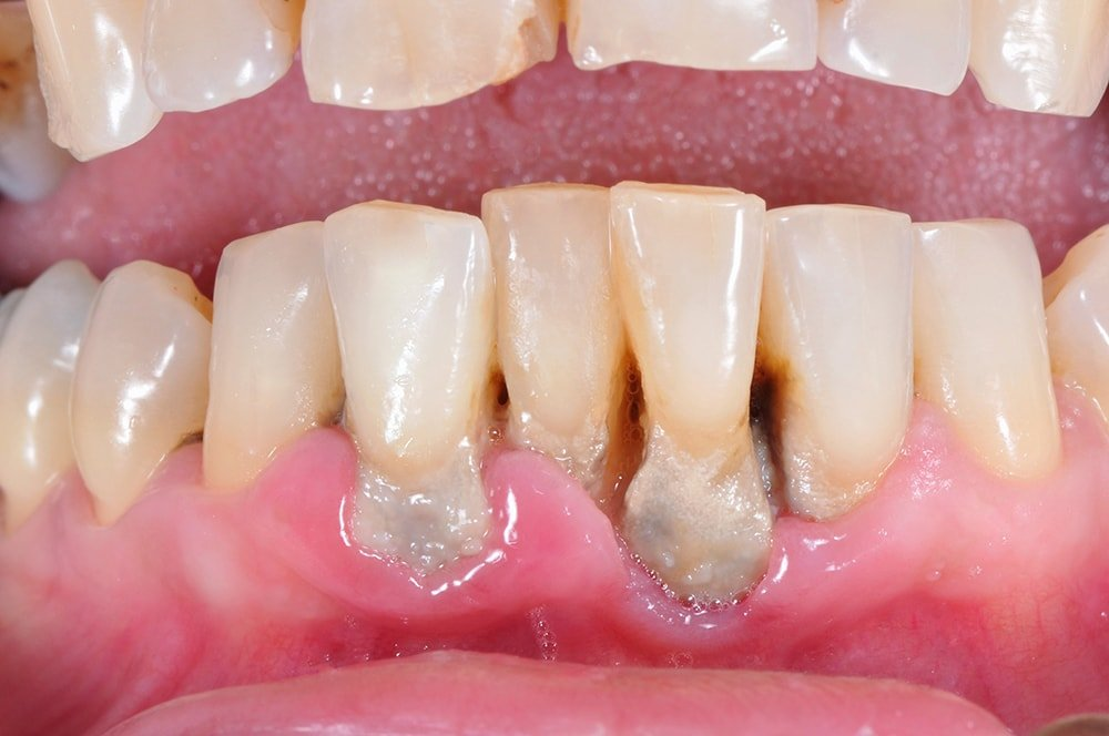 What Is The Main Cause Of Gum Disease