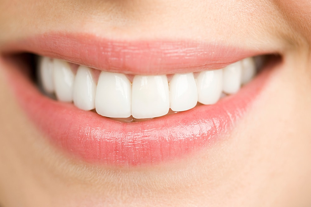 What Are Porcelain Veneers? | Dental Treatments