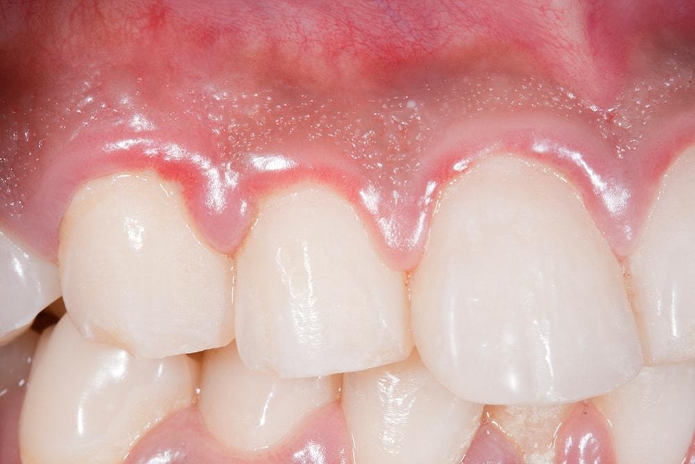 Swollen gums.