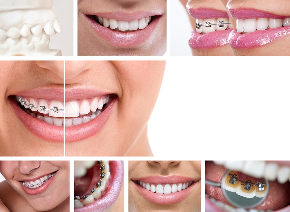 Orthodontic braces.