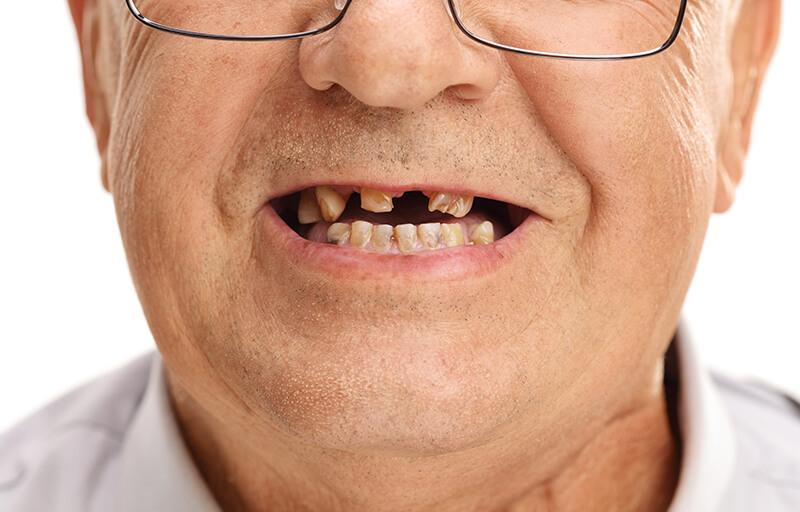 missing-my-teeth
