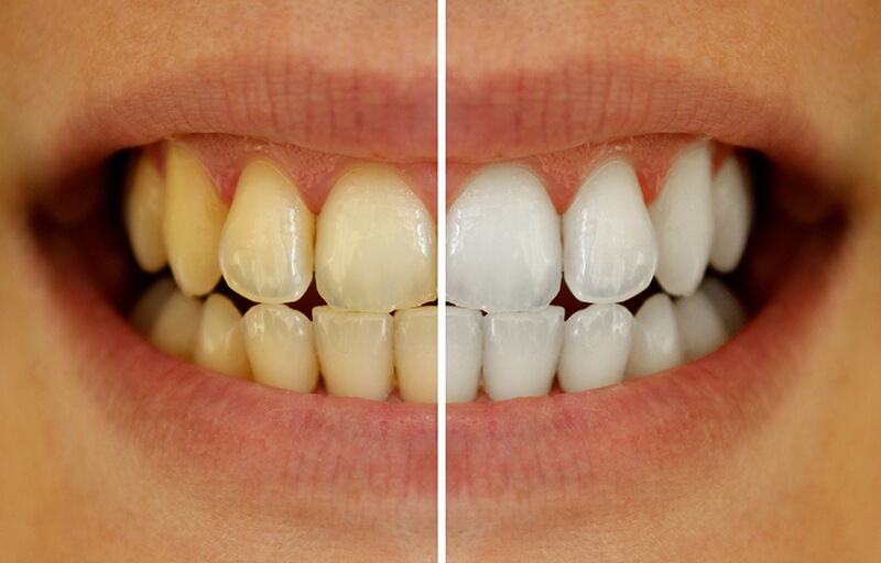 How To Whiten Teeth With Charcoal