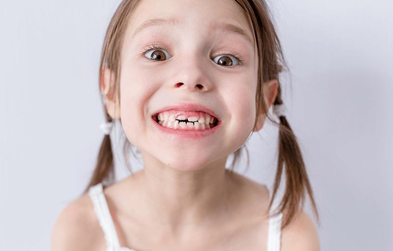 kids baby teeth