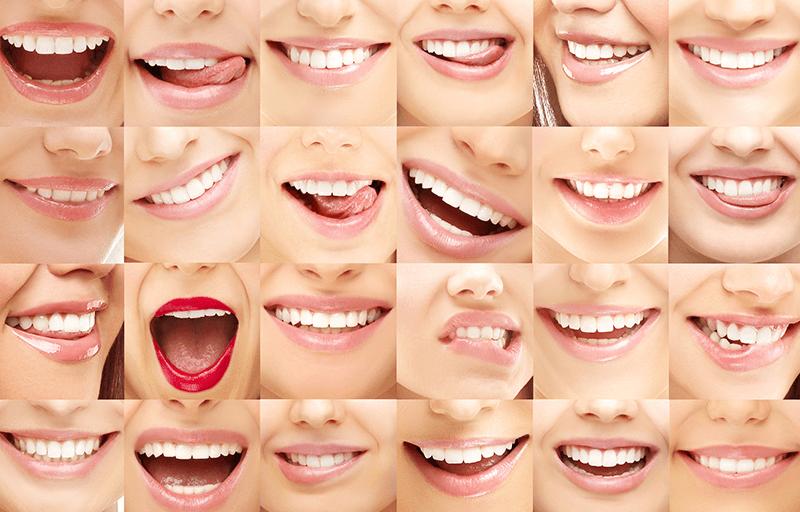 dental summer