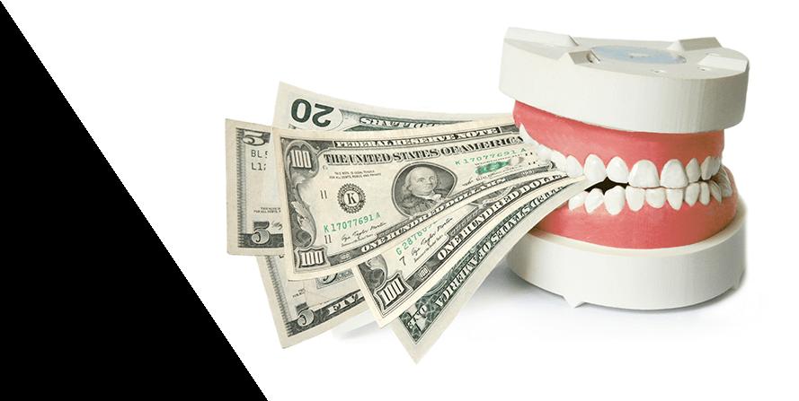 Dental Insurance Limitations on Dentures