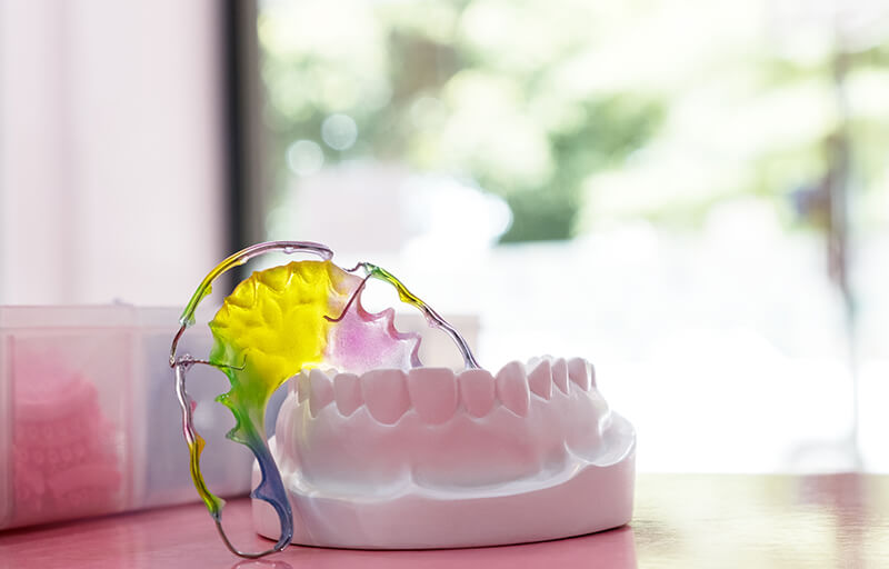 Types of orthodontic retainers.